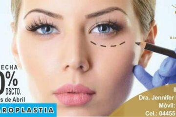 Promotora de Servicios Medicos y SPA CDMX-Blefaroplastia Cirugia-Biologycare